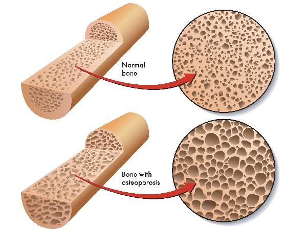 osteoporosis-bone-leaching-calcium