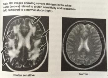 inflammation-gluten-sensitive-brain