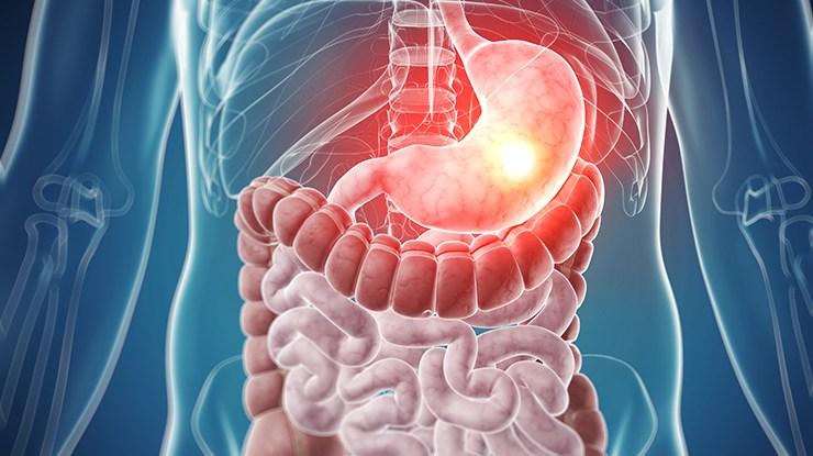 Как лечить функциональные расстройства желудка
