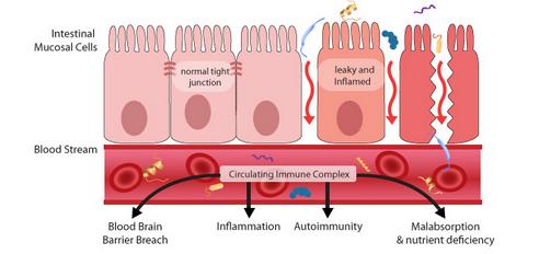 leaky-gut-intestinal-permeability-auto-immunity